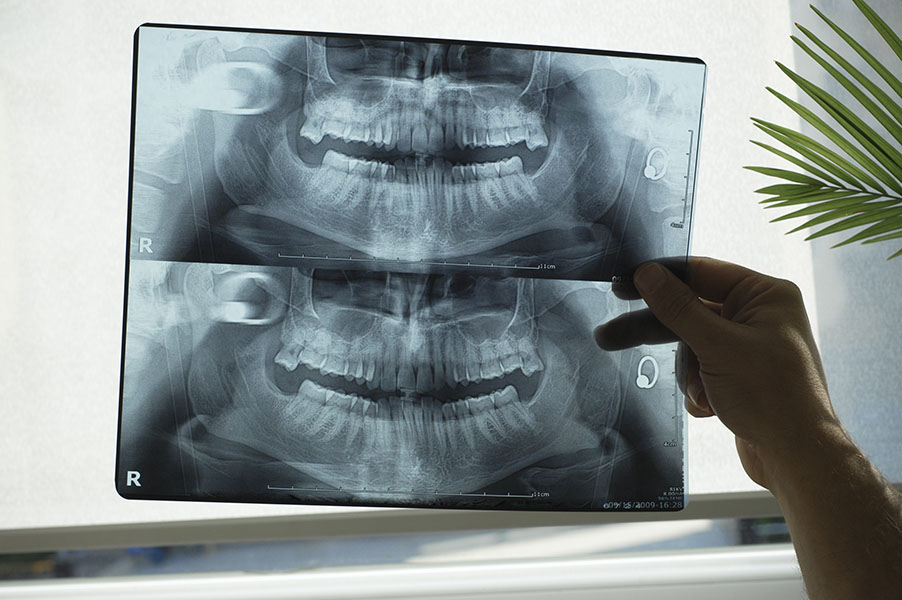 Диагностика верхней челюсти