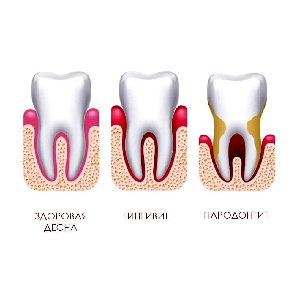Сравнение зубных заболеваний